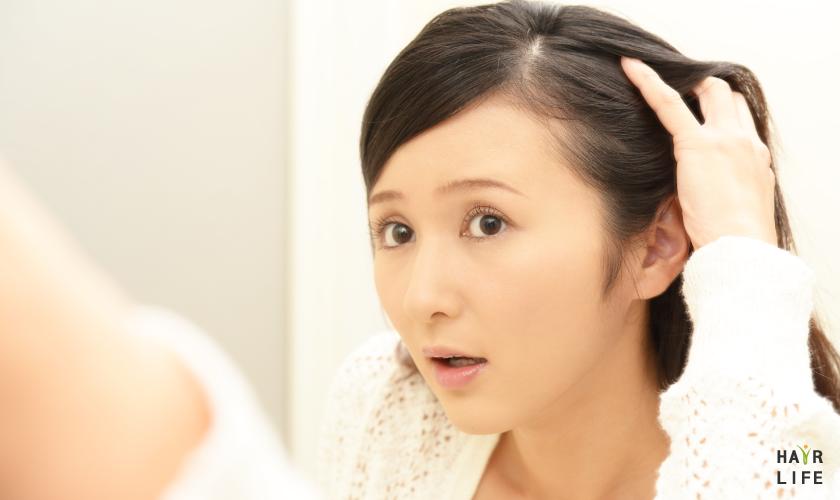 女性掉髮.禿頭原因