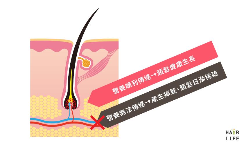 營養不能到達頭皮毛囊頂端也是造成掉髮的原因之一。