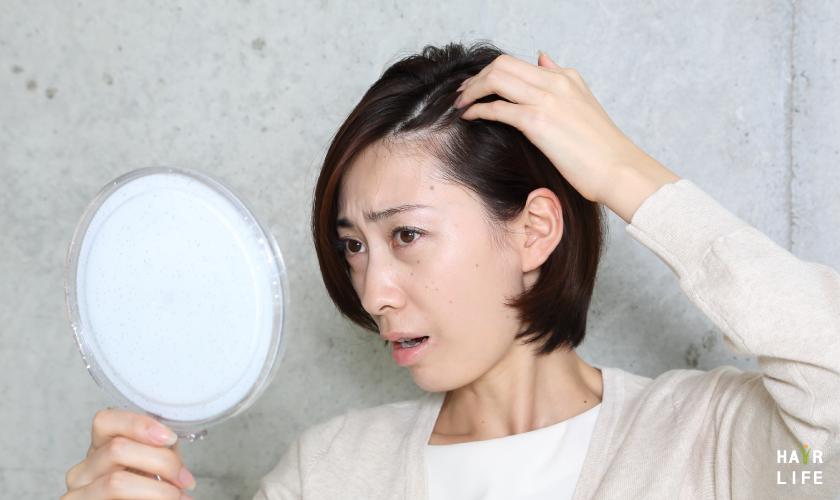 牽引性掉髮的原因