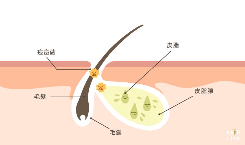 荷爾蒙一旦失調,就會開始分泌皮脂,造成頭皮出油。