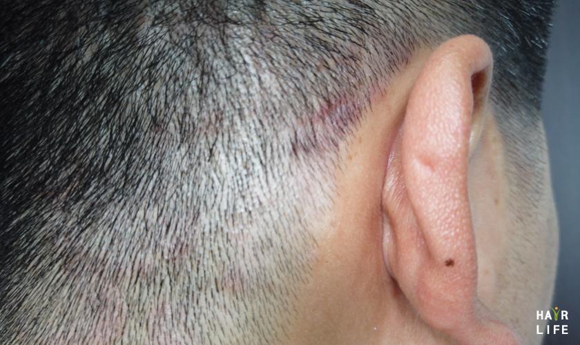 頭皮為什麼會發紅?