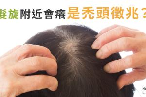 髮旋附近頭皮會癢是禿頭的徵兆!?
