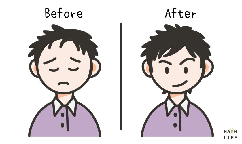 植髮手術也會失敗嗎?