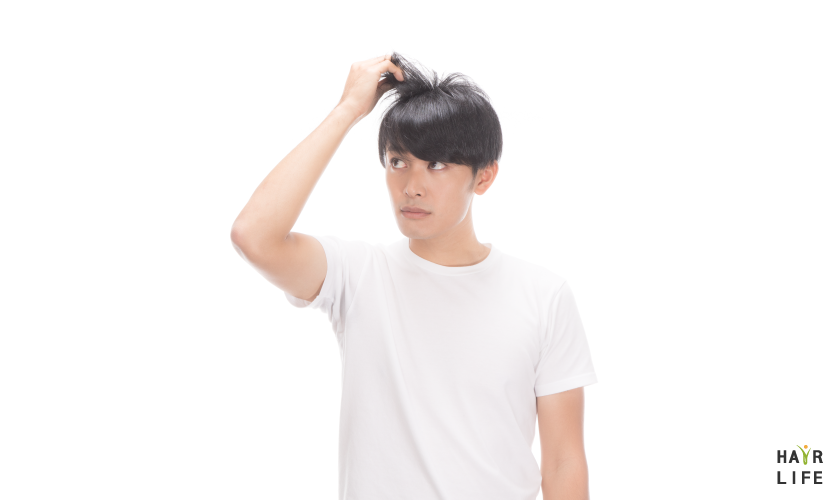 植髮手術是什麼?