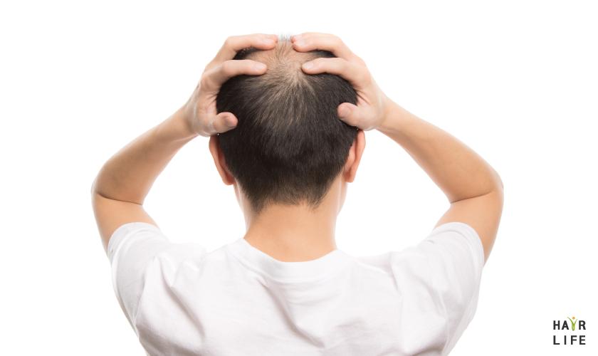 植髮手術失敗案例