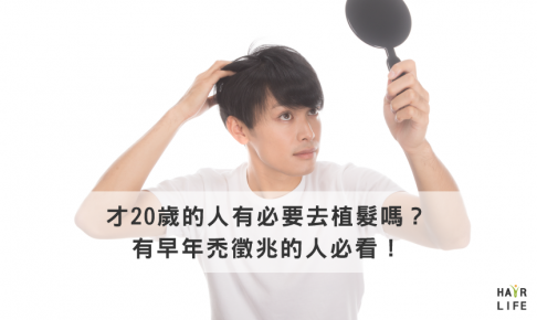 20歲有必要植髮嗎?有早年禿徵召的人必看!