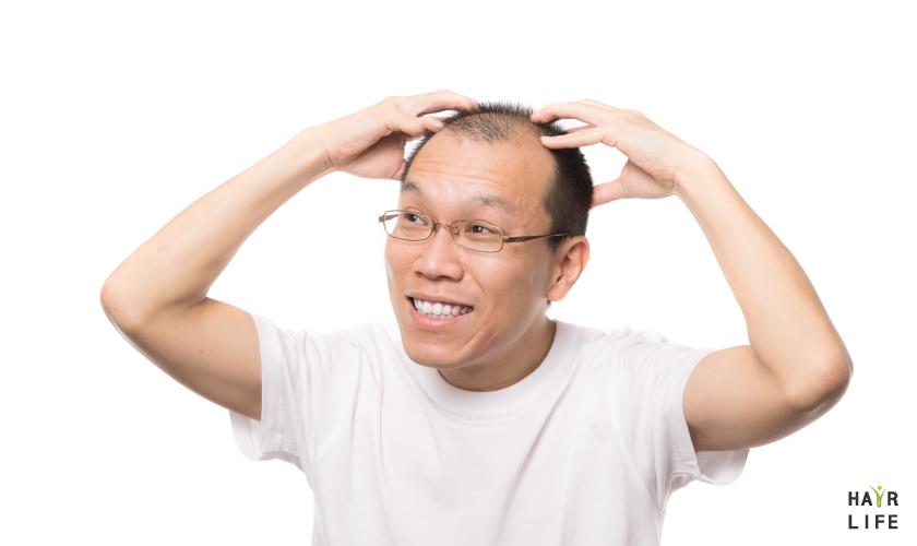 頭皮保養第五招:按摩頭皮