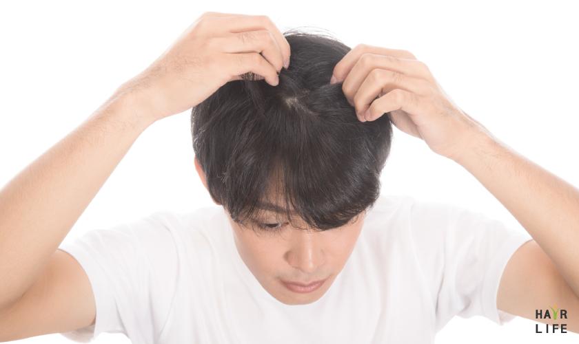 年輕人掉髮問題