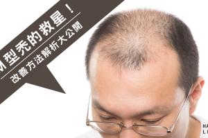 禿頭改善-M型禿真的沒救了嗎?M型禿的改善方法解析大公開!