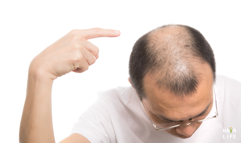 你知道M型禿的成因嗎?