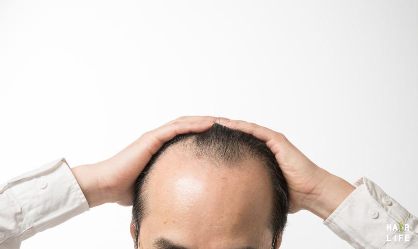 壓力造成M型禿