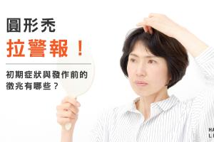 圓形禿拉警報!禿頭的初期症狀與發作前的徵兆有哪些?