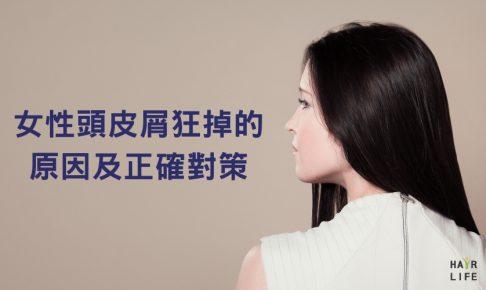 女性狂掉頭皮屑的原因及改善對策
