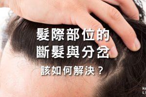髮際部位的斷髮與分岔竟是禿頭前兆?該如何解決?