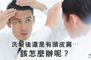 洗髮後頭皮屑還是好多⋯該怎麼辦才好?