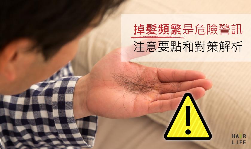 掉髮頻繁是危險警訊!預防禿頭的要點和對策
