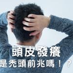頭皮發癢是禿頭前兆嗎!?淺談兩者之間的關聯性