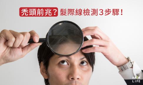 【禿頭前兆】髮際線後移了嗎?3個步驟教你判別!