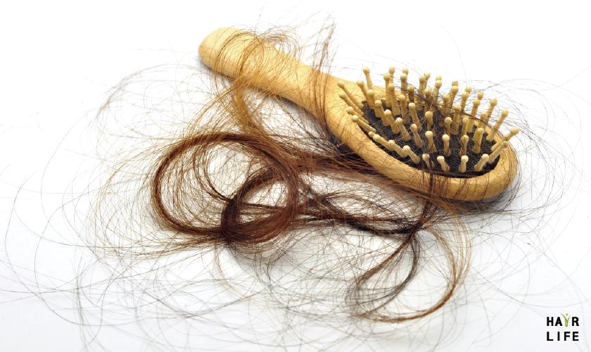 頭皮曬傷症狀之四:容易掉髮、頭髮稀疏