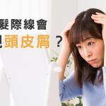 為何髮際線會出現頭皮屑?原因與預防方法大揭密!