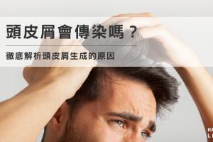 頭皮屑會傳染嗎?徹底解析頭皮屑生成的原因