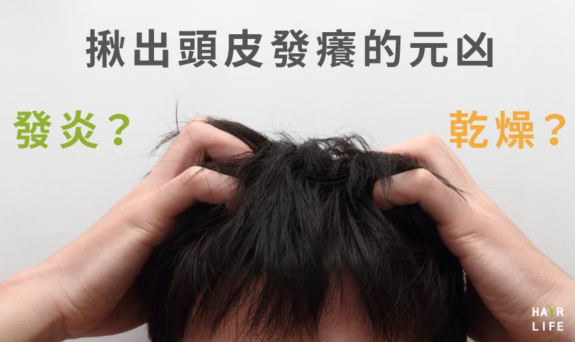 頭皮發癢難道只是因為乾燥嗎?詳細介紹頭皮發癢的可能原因及應對措施