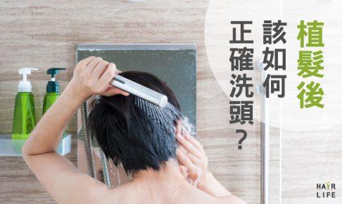 做了植髮手術後,洗頭髮時該注意什麼?