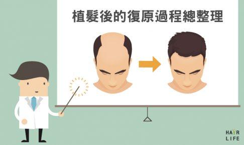 植髮手術後的復原過程總整理!