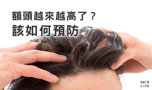 額頭越來越高的原因!?~預防禿頭對策大匯集~