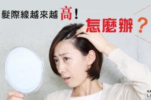 你的瀏海變稀疏了嗎?髮際線越來越高的原因及改善方法大公開!