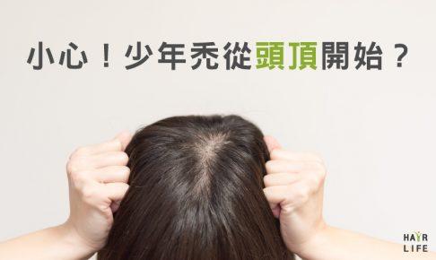 少年禿頭會從頭頂開始!?【警告】〜髮旋禿不可輕忽〜