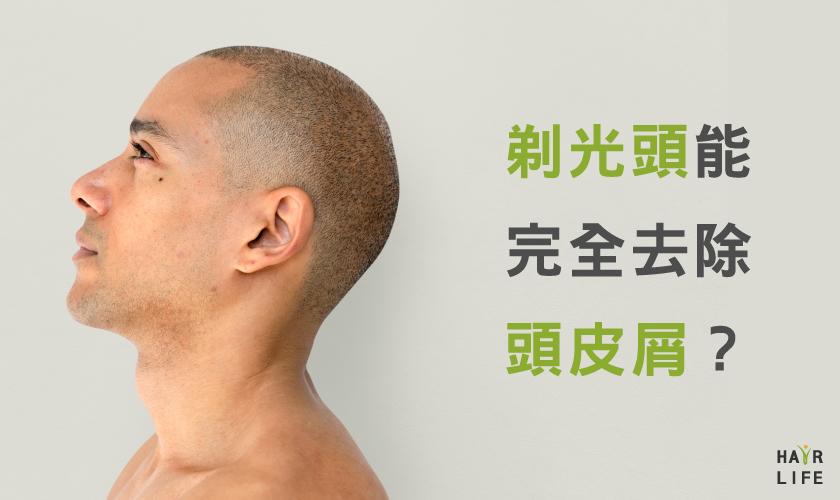 【謠言破解】剃光頭真的能完全去除頭皮屑!?