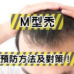 M型禿頭的預防法及對策分析!及早治療是關鍵