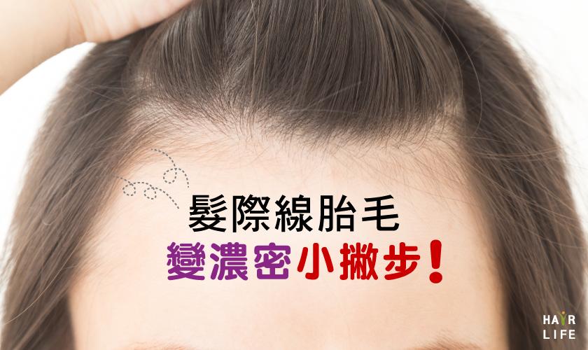 髮際線的胎毛好稀疏!用這幾招方法讓它更濃密