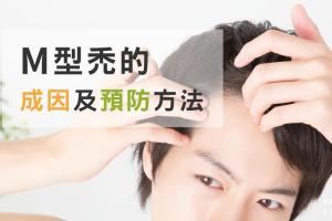 M型禿頭的預兆…!?M型禿的成因及預防方法大公開