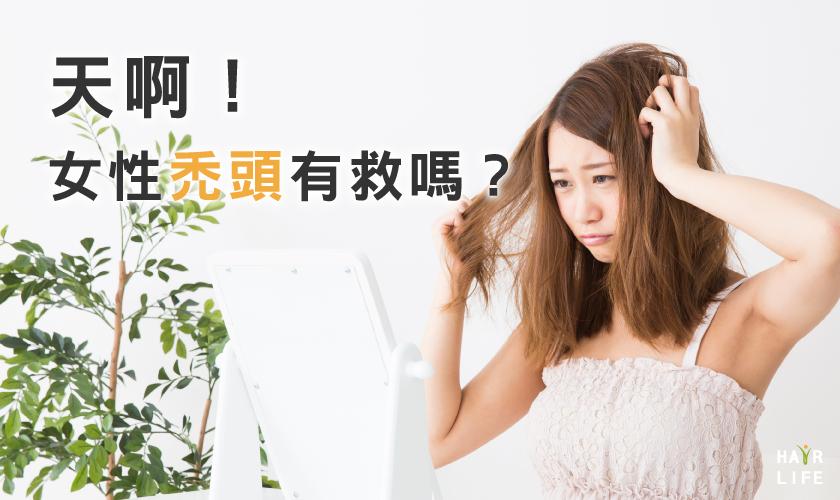 女性禿頭有教嗎?!要多久才會改善呢?