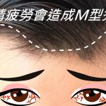 眼睛疲勞會導致M型禿?解析髮際線禿頭和眼睛的關聯性