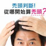 從哪開始算禿頭?由額頭高度判斷禿頭的方法