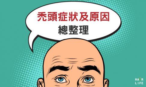 禿頭種類大不同!各種禿頭的症狀及原因總整理