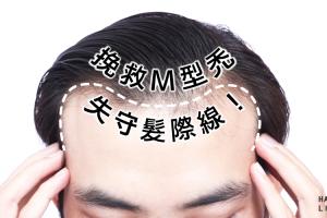 M型禿頭年輕化!?如何挽救失守髮際線?