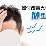 只禿半邊的M型禿頭是怎麼回事?改善對策及成因一次告訴你!