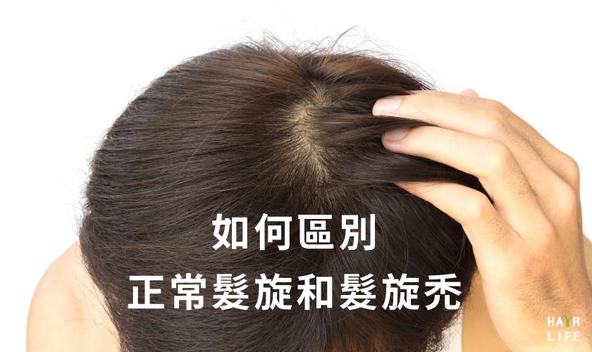 正常髮旋和髮旋禿的差異?【簡單的分辨方法報你知!】