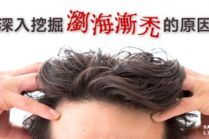 前額禿頭救星:深入挖掘瀏海漸禿的原因與解決辦法
