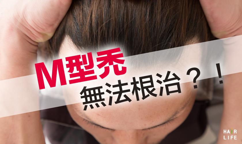 M型禿頭無法根治嗎?!真相大解析!