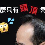 為什麼只有頭頂禿頭?禿頭原因出在荷爾蒙!?