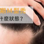 末期的M型禿是什麼狀態?【避免情況已無法挽救的方法】