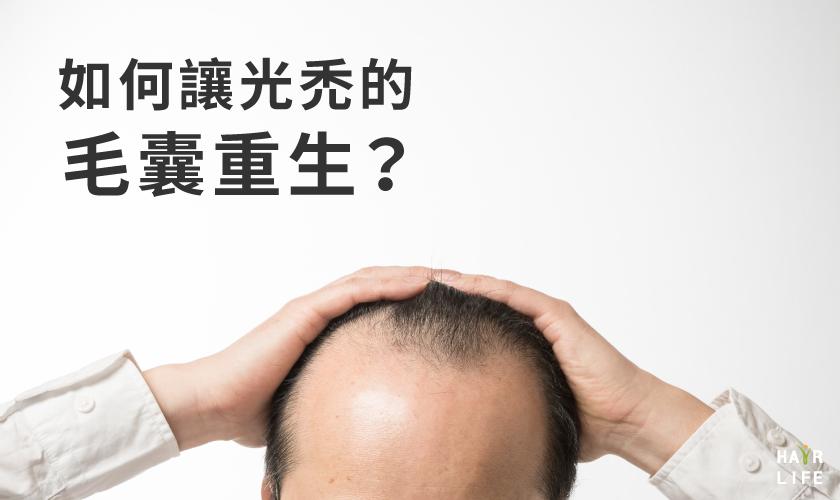 如何讓光禿的毛囊重生?改善禿頭對策及未來新醫療技術大公開!