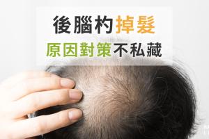 後腦杓掉髮和生活習慣有關!?原因及改善對策一次告訴你!