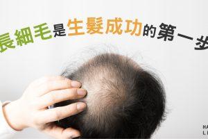 長細毛是讓改善禿頭的第一步!但該如何讓細毛繼續成長?