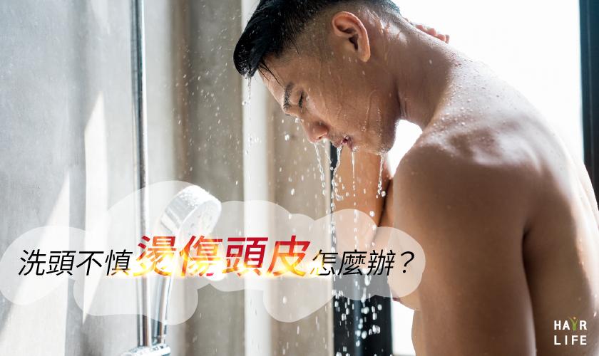 洗頭時不慎燙傷頭皮怎麼辦?【超過這溫度要注意】